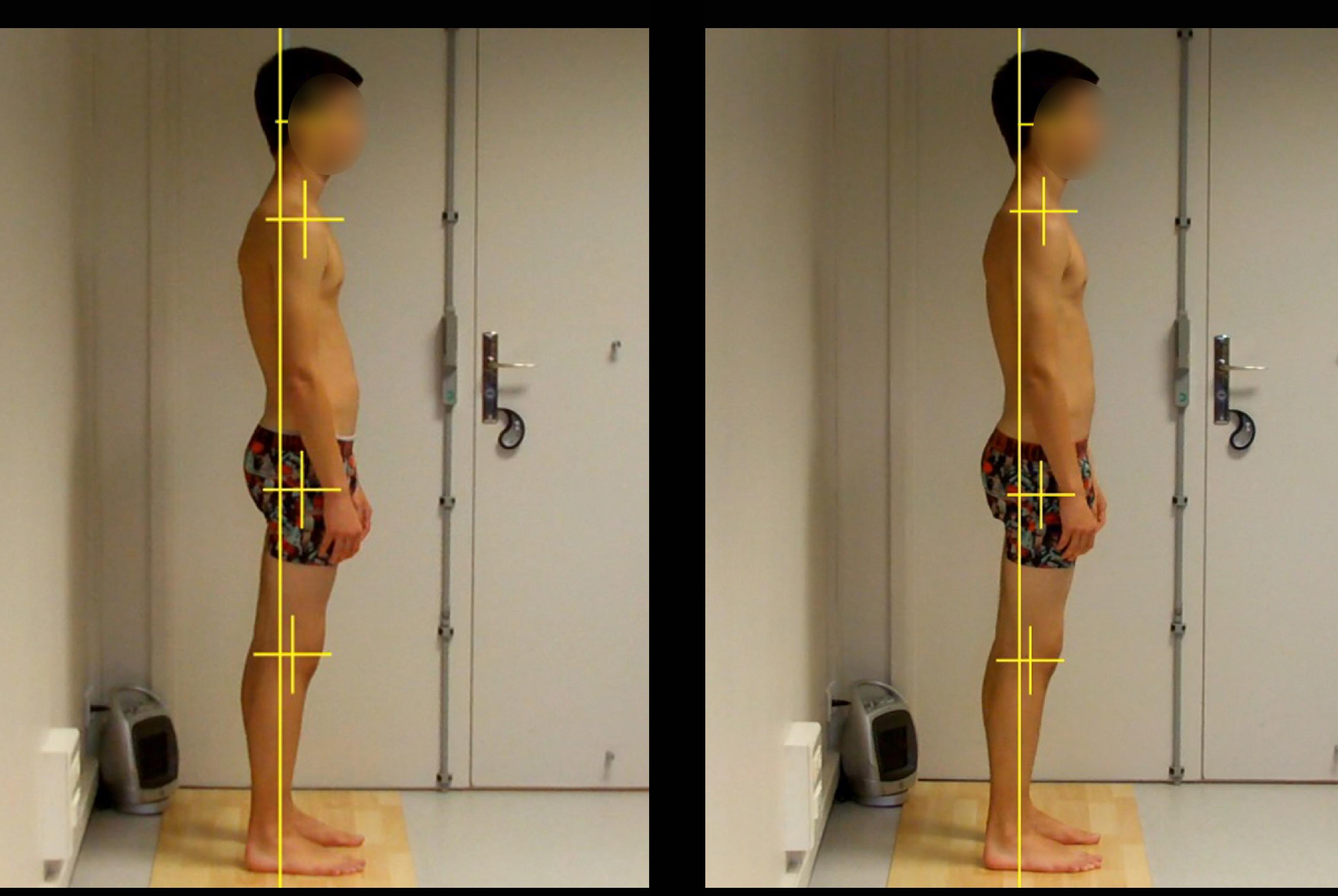correction posture sport